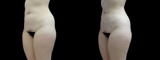 Case #141 Liposuction