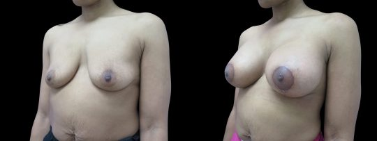 Case #144 Breast augmentation