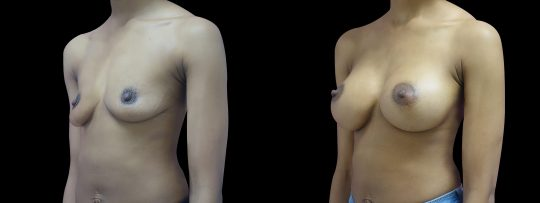 Case #146 Breast augmentation