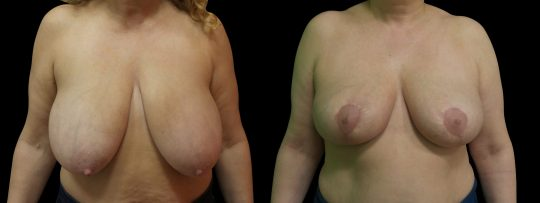 Case #163 Breast Reduction