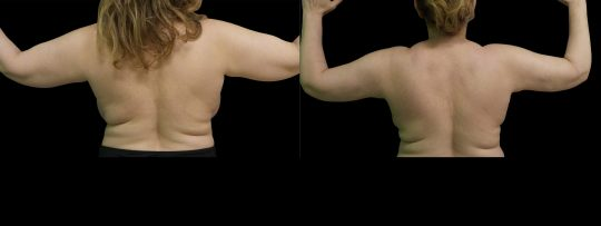 Case #164 Liposuction of the arms