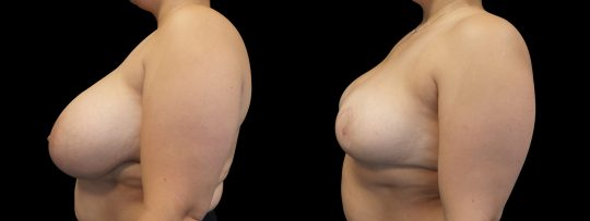 Case #166 Breast Reduction