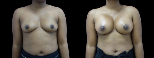 Case #102 Breast augmentation