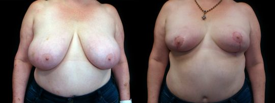 Case #112 Breast Reduction