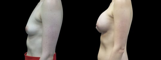 Case #114 Breast augmentation