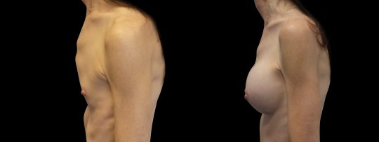 Case #115 Breast augmentation