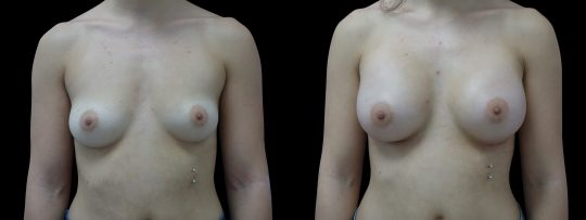 Case #117 Breast augmentation