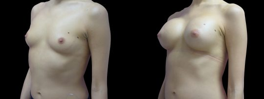 Case #118 Breast augmentation