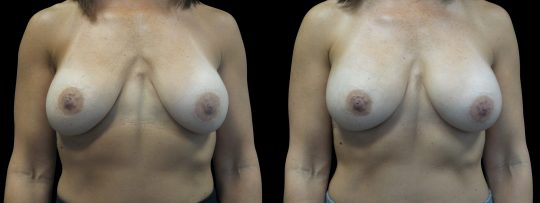 Case #158 Breast Augmentation
