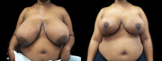 Case #138 Breast Reduction
