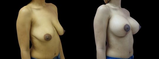 Case #156 Breast Lift and Augmentation