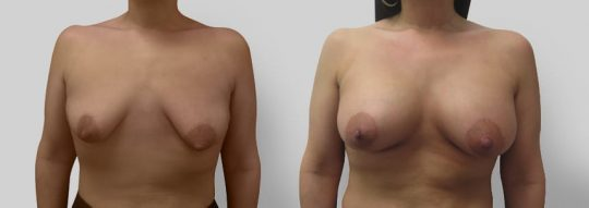 Case #11 Breast Augmentation