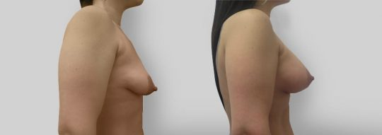 Case #11 Breast Augmentation