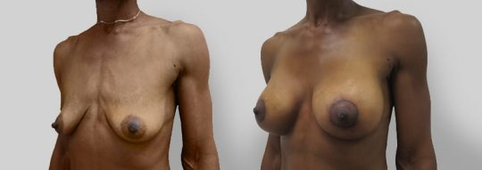 Case #13 Breast Augmentation