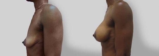 Case #13 Breast Augmentation