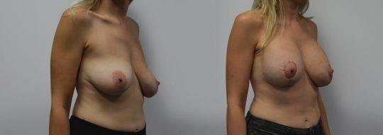 Case #2 Breast Augmentation