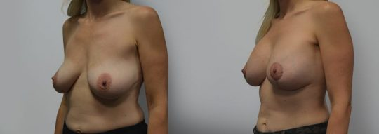 Case #2 Breast Augmentation