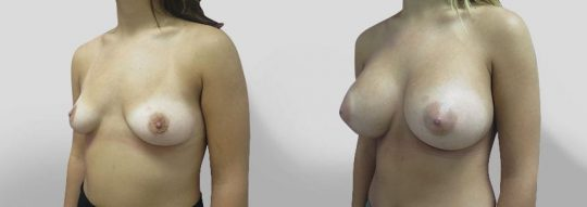 Case #30 Breast Augmentation