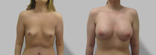 Case #80 Breast augmentation