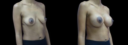 Case #91 Breast augmentation