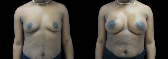 Case #92 Breast augmentation