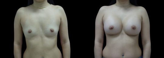 Case #93 Breast augmentation