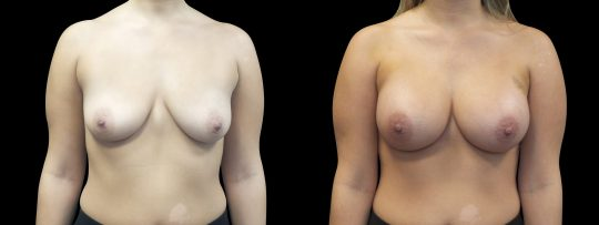 Case #169 Breast Augmentation