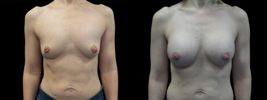 Case #170 Breast Augmentation