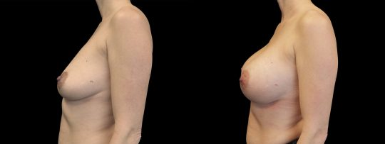 Case #168 Breast Augmentation