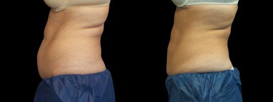 Case #175 CoolSculpting upper and lower abdomen