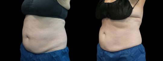 Case #173 CoolSculpting flanks and abdomen