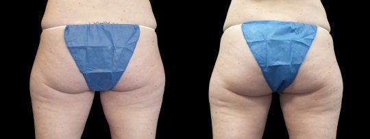 Case #176 CoolSculpting inner thighs