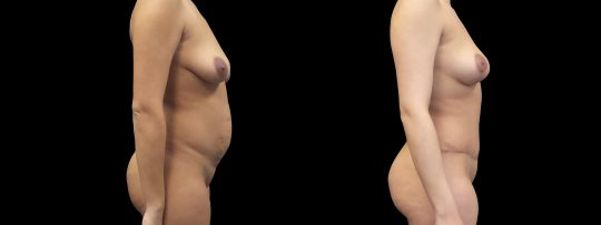 Case #177 Mommy makeover: tummy tuck, breast lift
