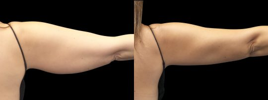 Case #172 CoolSculpting arms