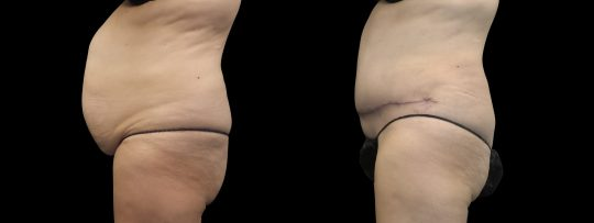 Case #178 Tummy tuck