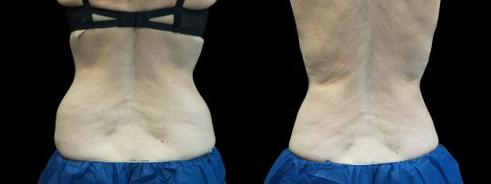 Case #174 CoolSculpting upper and lower flanks