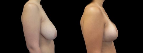 Case #179 Breast Reduction