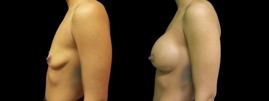 Case #159 Breast augmentation