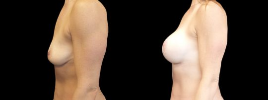 Case #160 Breast augmentation