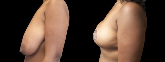 Case #181 Breast Lift