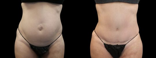 Case #180 Tummy Tuck