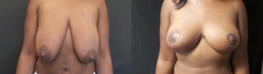 Case #ED Breast Lift