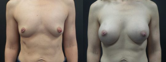 Case #JW Breast augmentation