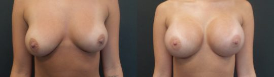Case #KK Breast augmentation
