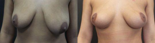 Case #MC Breast Lift