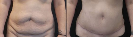 Case #MG Tummy Tuck