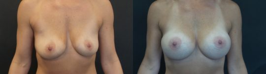 Case #ML Breast augmentation
