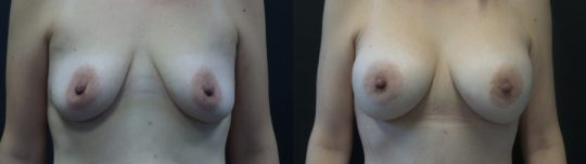 Case #ND Breast augmentation