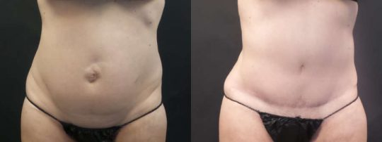 Case #PM Tummy Tuck