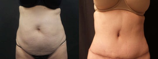 Case #SL Tummy Tuck